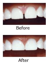 cosmetic-bonding-dental-repair-covina
