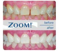 Teeth Whitening Walnut CA
