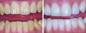 teeth-whitening-dentist-covina-ca