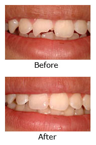 cosmetic-dentistry-west-covina