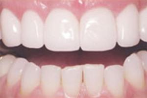 Dentist West Covina